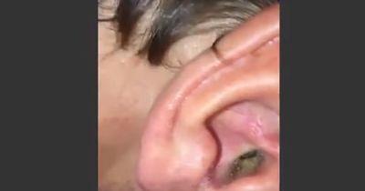 Was er in seinem Ohr hat wirst du nicht glauben