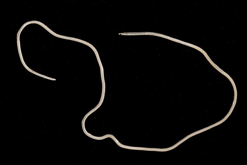 Gefährlicher Parasitenwurm, der menschliches Hirn infizieren kann, gefunden!